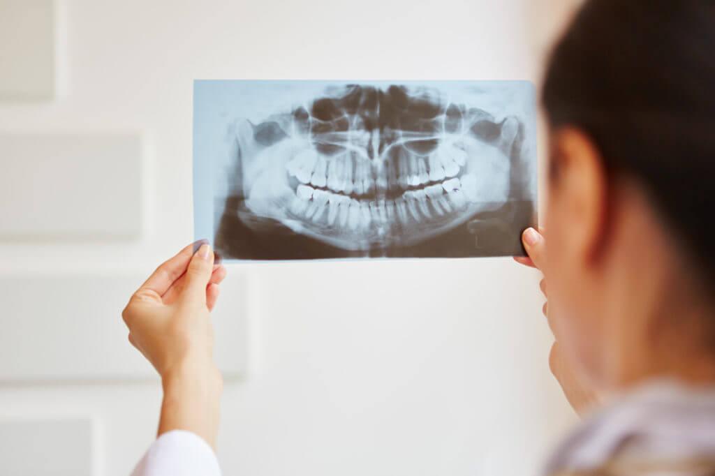 Ärztin begutachtet Röntgenbild von Zähnen.