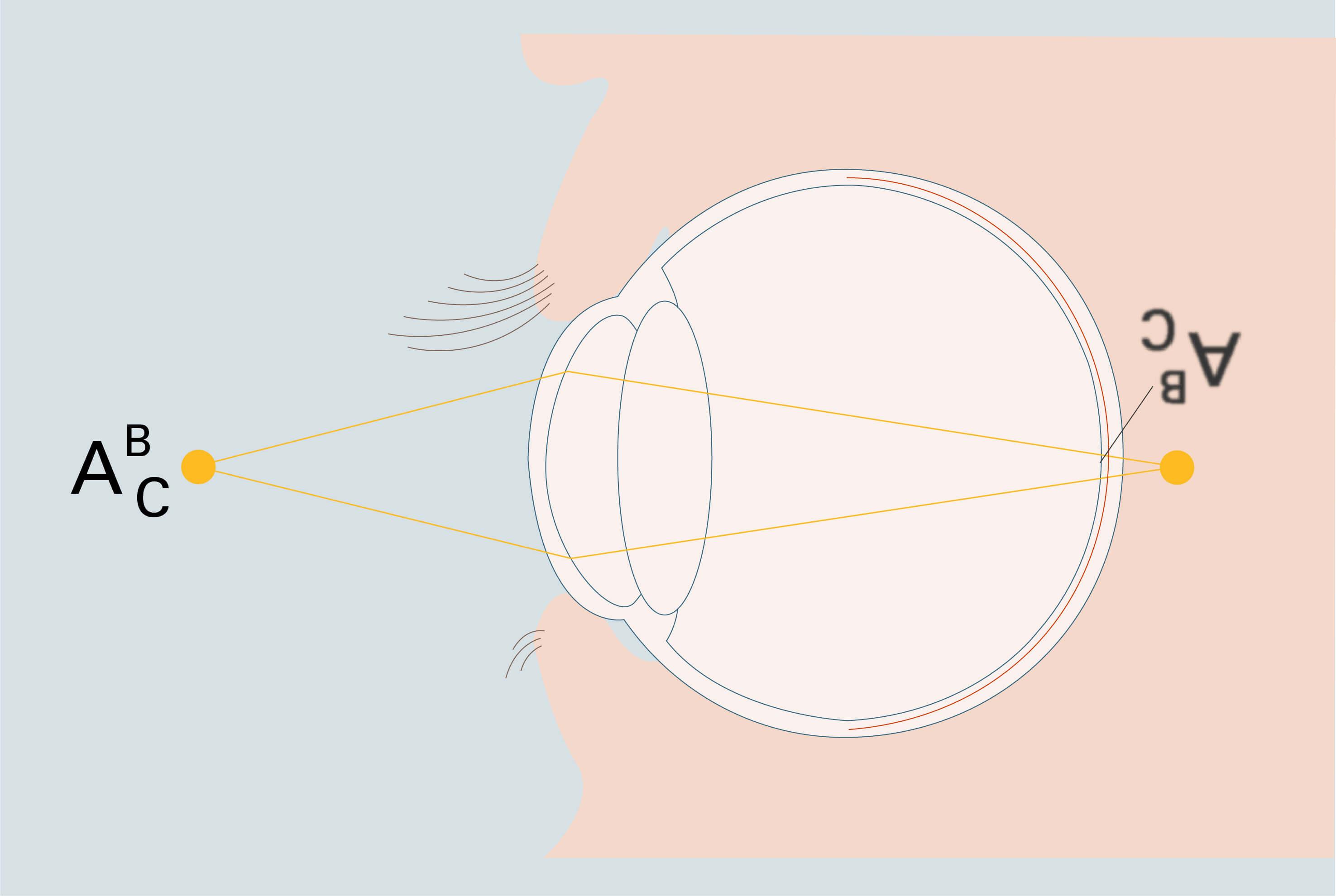 Querschnitt des Auges mit Brennpunkt hinter der Netzhaut - Grafische Darstellung