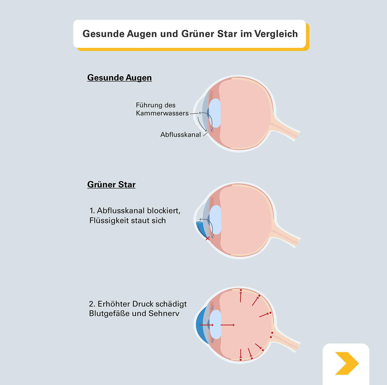 Vergleich gesundes Auge und Auge mit Grünem Star - Grafische Darstellung