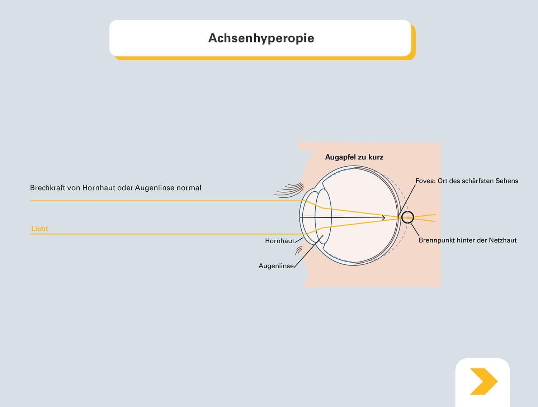 Erläuterung wie ein kurzer Augapfel Weitsichtigkeit verursachen kann - Grafische Darstellung