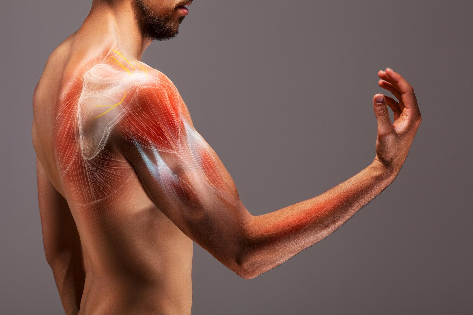 Darstellung von Muskelfasern in Arm und Schulter.