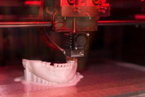 Zahnimplantat aus dem 3D-Drucker