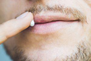was-hilft-gegen-herpes