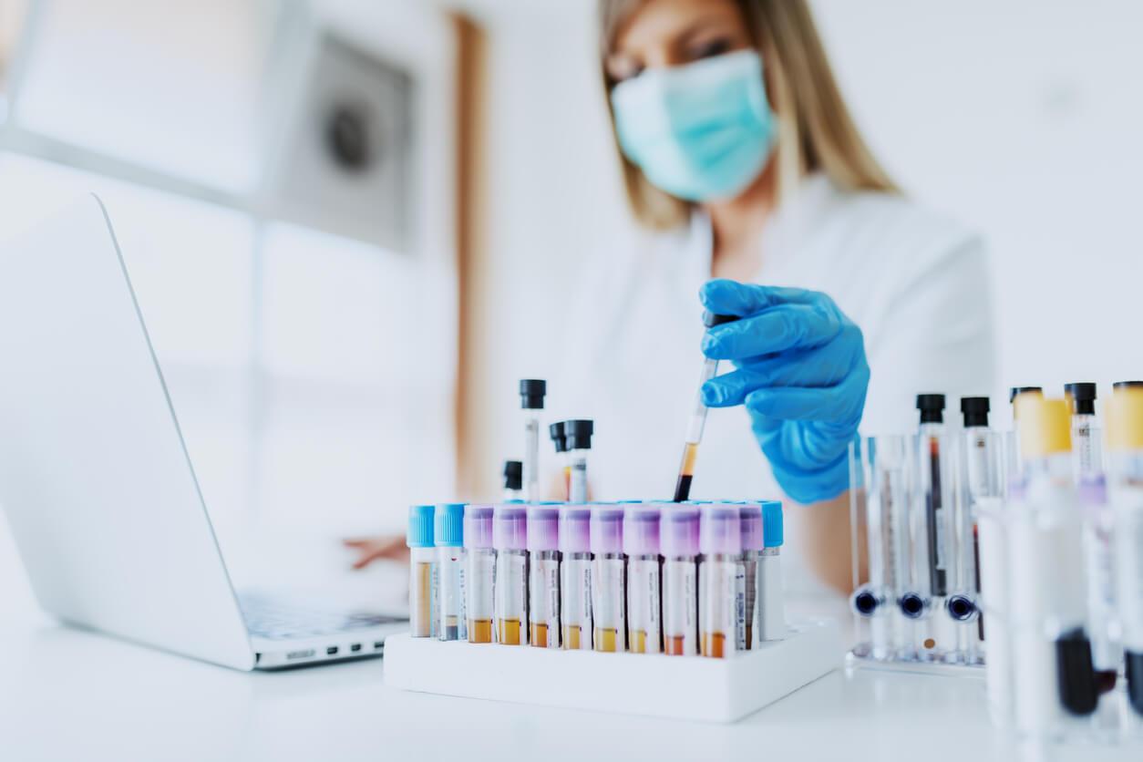 hiv-test-wird-ausgewertet