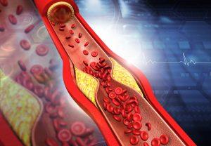 verstopfte-arterie-arterienverkalkung