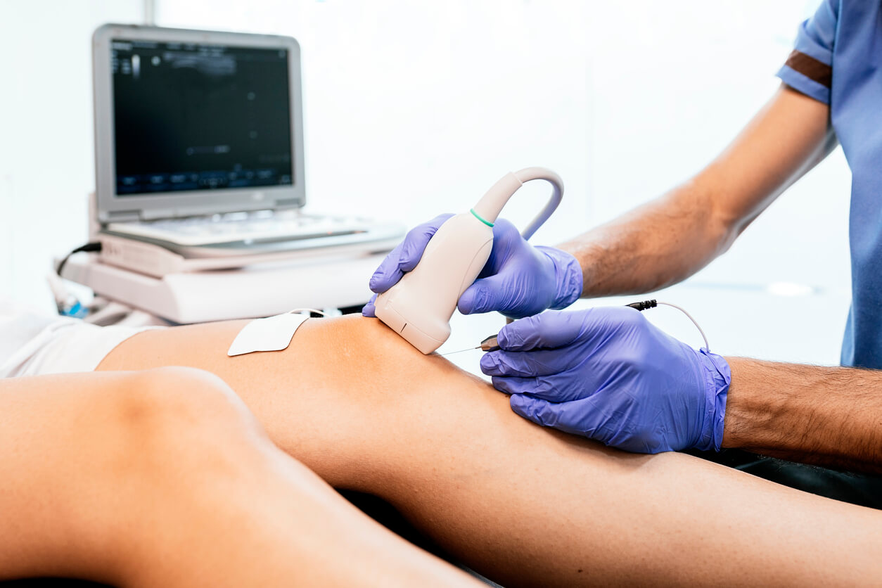 ultraschall-vom-knie