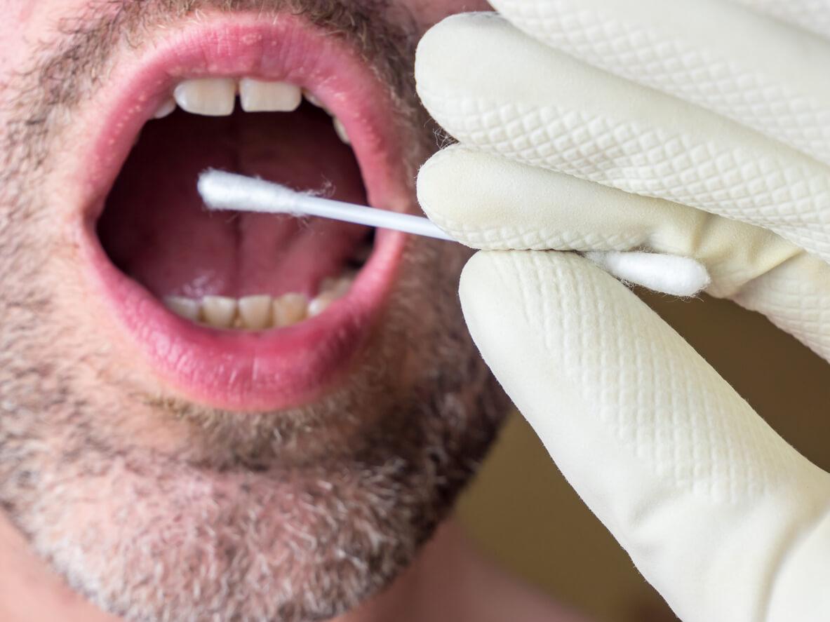 genuntersuchung-durch-abstrich-der-mundschleimhaut